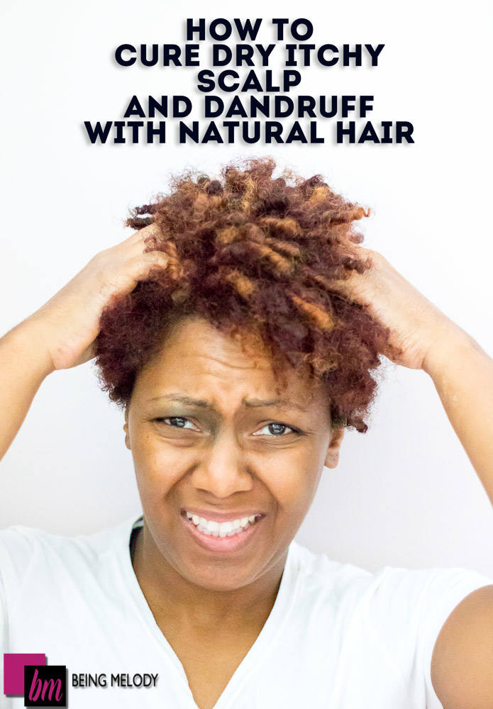 How To Cure Dry Itchy Scalp And Dandruff With Natural Hair
