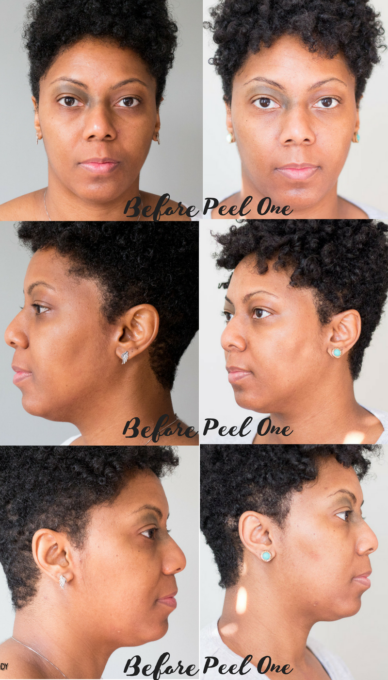Before and AFter Chemical Peel One at About Face Skincare Philadelphia #melodysaboutface