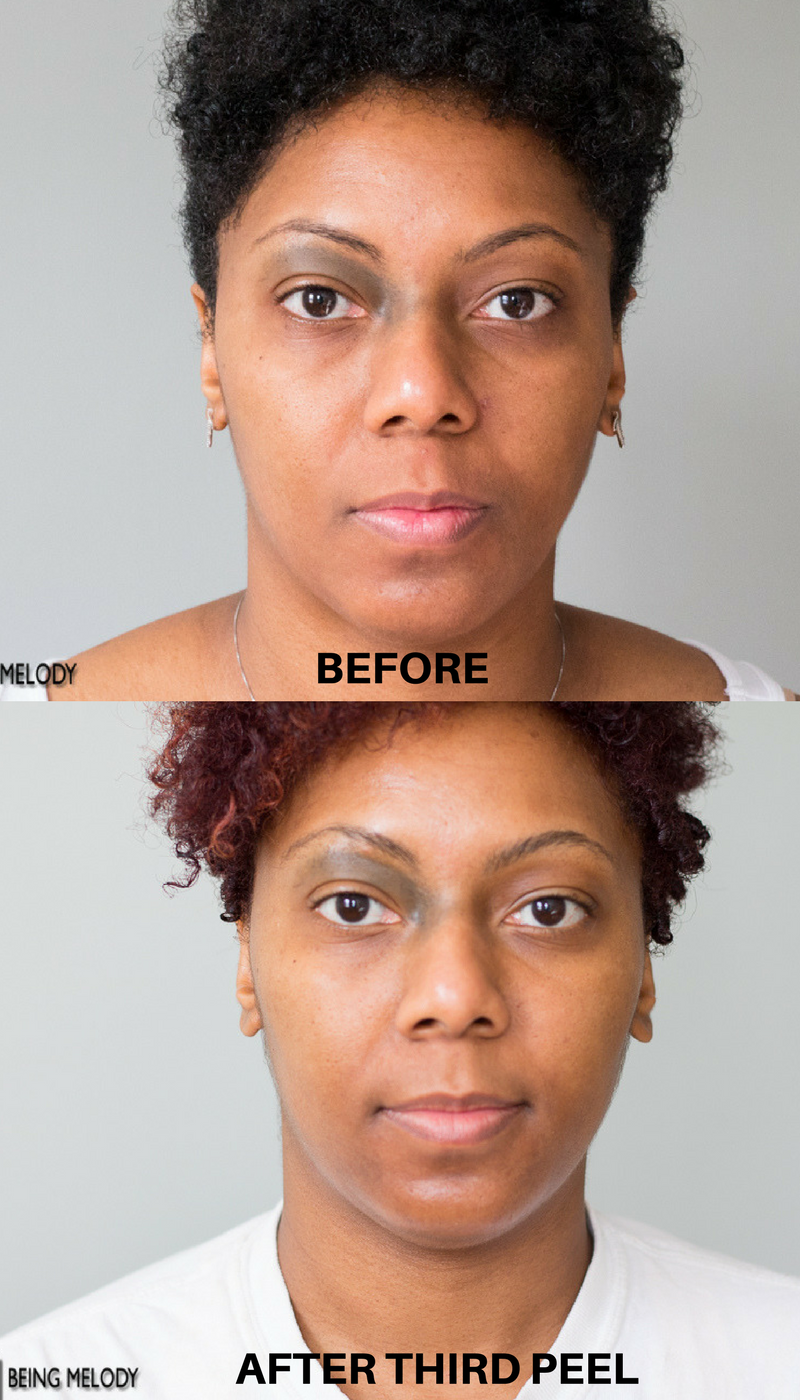 Before Chemical Peel and After Third Chemical Peel #melodysaboutface