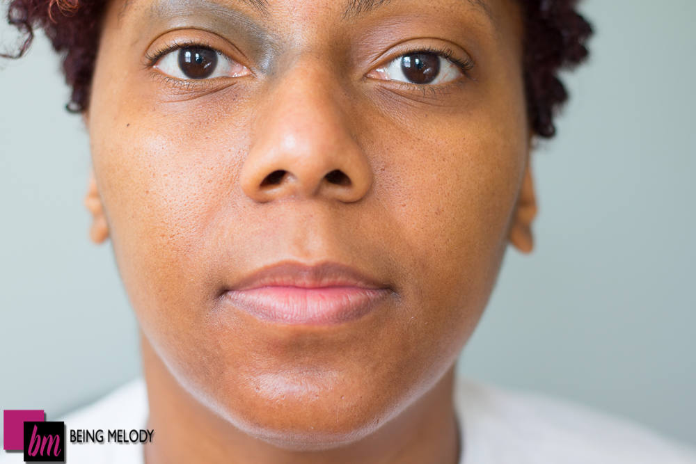 Melodys About Face chin Hyperpigmentation Improvement